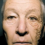 Так солнечные лучи старят вашу кожу